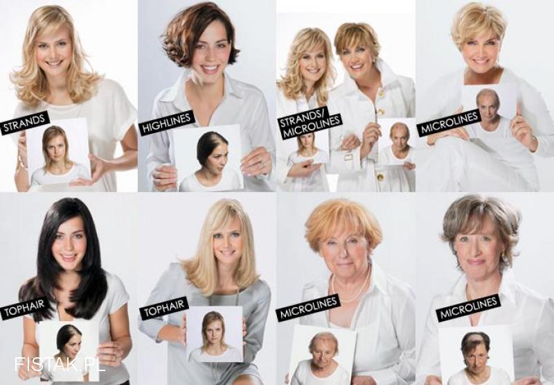 Masz problem , pomożemy Ci niechirurgiczne przedłuzanie włosów Dorota Olejniczak